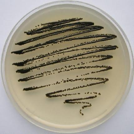 Microbiological Garden - Salt-loving black yeasts
