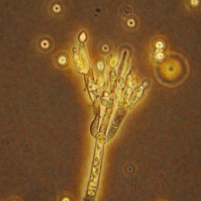 Unter dem mikroskop der pinselschimmel penicillium von dem einige